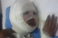 Un niño sufrió graves quemaduras por jugar con pirotecnia
