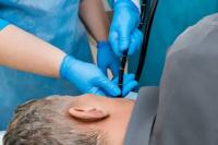 Qué es una endoscopía y cuáles son sus riesgos