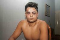Otra vez la Policía: dejaron inconsciente a un joven