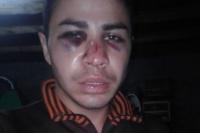 Brutal golpiza a un jugador de la B Local: quiereque los responsables vayan presos