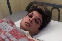 Detuvieron a uno de los delincuentes acusado de golpear ferozmente a un chico caucetero