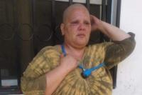 Frenaron el desalojo de la mujer con cáncer que se había encadenado