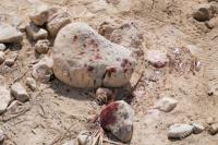 Lo atacaron a piedrazos y le provocaron hundimiento de cráneo