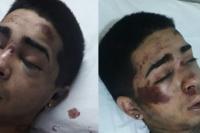 Atacan ferozmente a un joven de 18 años y lo dejan en terapia intensiva