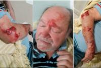 La autopsia complica al jubilado que mató a un ladrón: disparó a quemarropa