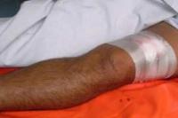 De un balazo le fracturaron la pierna a un hombre en Capital